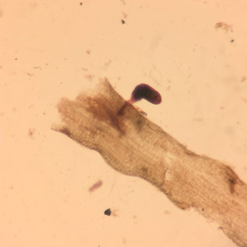 promip manejo integrado pragas controle biologico mip experience nematoides soja rotylenchulus reniformis femea 02